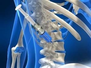 Πόνος στη σπονδυλική στήλη: Αναίμακτες επεμβάσεις – Σύγχρονες τεχνικές θεραπείας