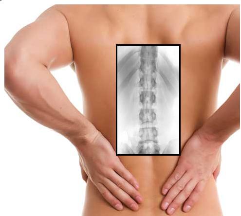 """Η """"Κυφοπλαστική"""" στην αντιμετώπιση των καταγμάτων σπονδυλικής στήλης"""